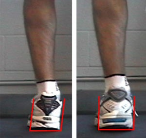 ca68deeef6 Learning Center: How to Determine Pronation